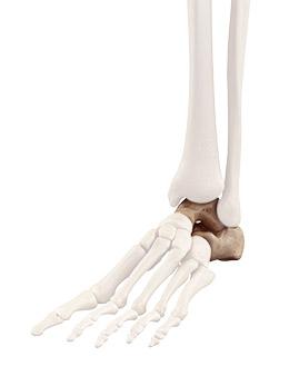 Pathologies de l'arrière pied