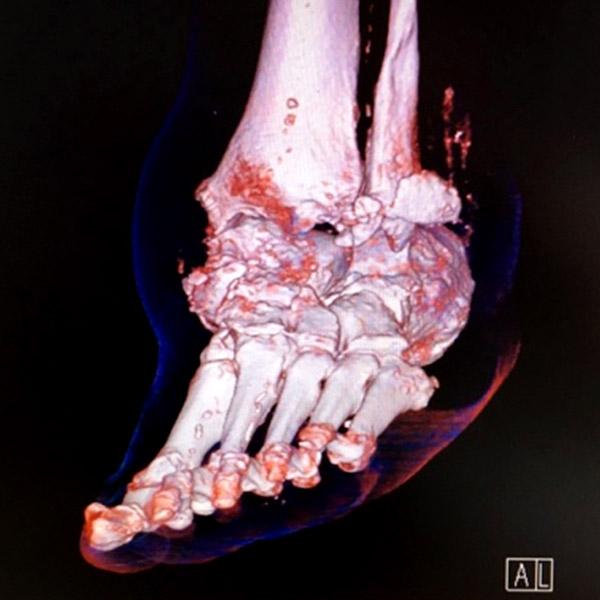 arthrose sous le pied