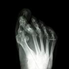 img HV + anomalie des orteils latéraux
