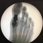 img Arthrodèse + raccourcissement des rayons latéraux
