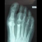 img Implant interphlex de la 2ème articulation métatarso phalangienne