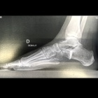 img Ostéotomie d