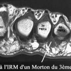 img IRM avec névrome de Morton du 3ème espace