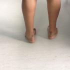 img Pied creux sur séquelles de pied bot