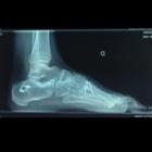 img Ostéotomie calcaneus