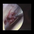img Lésion ostéochondrale : débridement perforation en arthroscopie