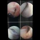 img Tenoscopie du tendon tibial postérieur