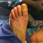 img Sans arthrodèse