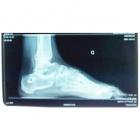 img Ostéotomie de valgisation du calcaneum