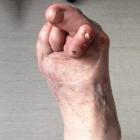 img Hallux valgus avec syndrome du 2ème rayon avec cor dorsal douloureux