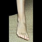 img Le pied intermédiaire