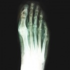 img Ostéophyte dorsal et pincement articulaire