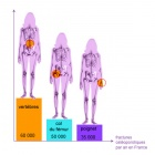 img Répartition sites fracturaires chez le patient ostéoporotique