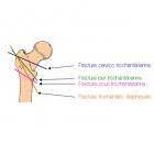 img Classification fracture massif trochantérien