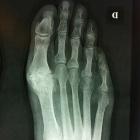 img Usure articulaire, Ostéophytes