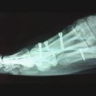 img Ostéotomie raccourcissante