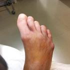 img Arthrose et coup de vent des orteils