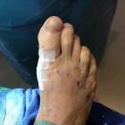 img arthrodèse et ostéotomie métatarsienne de réalignement