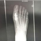 img Radiographie post opératoire
