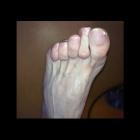 img Griffe des orteils sur pied creux